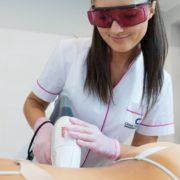 laserowa depilacja - plecy