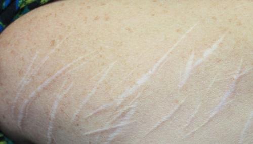 blizny po pęknięciach skóry